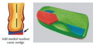 rearfoot-varus